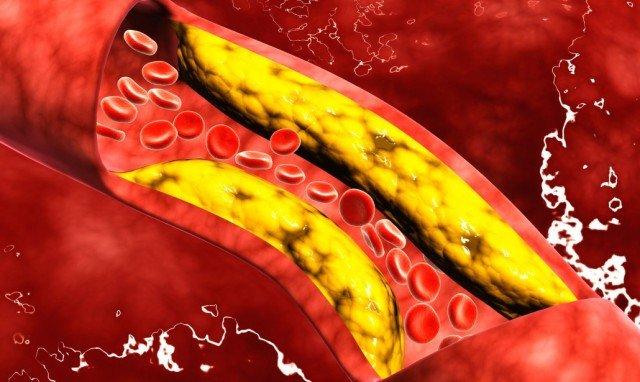 Rischio cardiovascolare, alirocumab riduce il colesterolo delle lipoproteine non ad alta densità