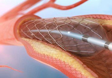 Infarto durante angioplastica: ticagrelor non superiore a clopidogrel nel ridurre il rischio