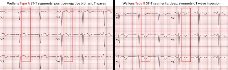 Lettura ECG. La Sindrome di Wellens