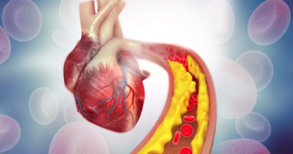 Malattia cardiovascolare aterosclerotica: evolocumab+statina riducono futura rivascolarizzazione