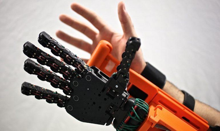 Protesi bioniche di arto superiore: al via 3 nuovi progetti