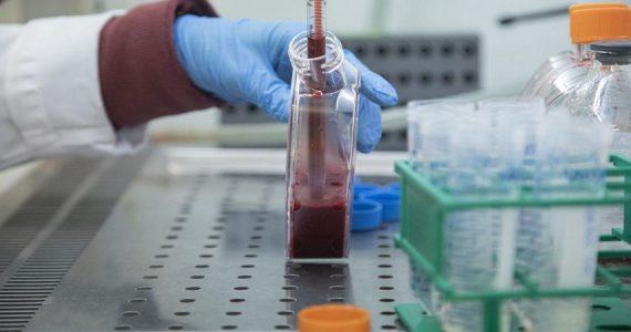 Sclerosi multipla aggressiva: efficace il trapianto autologo di cellule staminali ematopoietiche