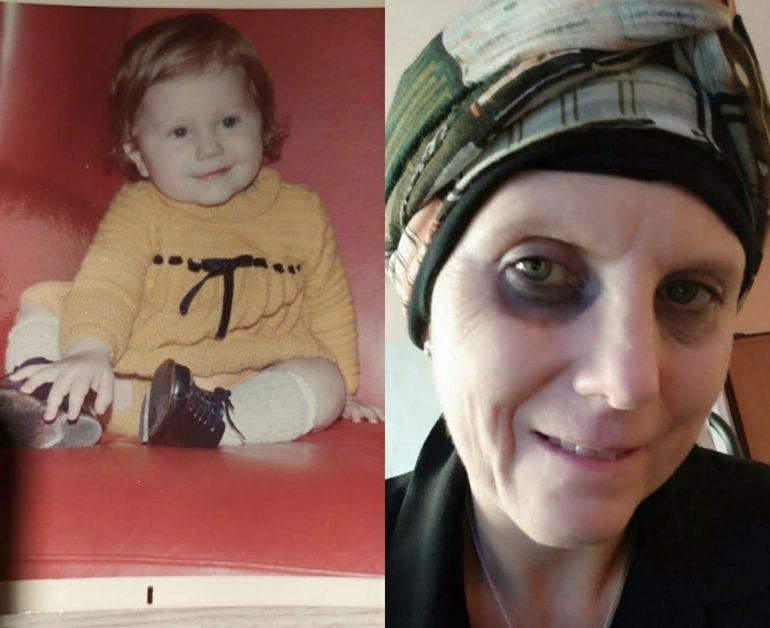 """""""Cerco la mia mamma naturale per salvarmi dal tumore"""""""