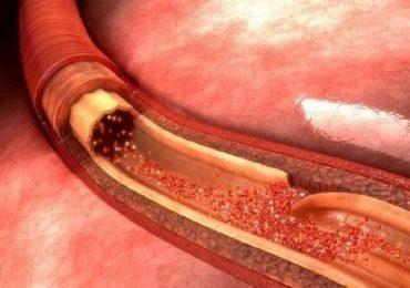 Dissecazione aortica: conosciamola meglio
