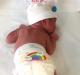 Modalità di monitoraggio della diuresi nel neonato