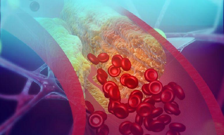 Ipercolesterolemia: combinazione di acido bempedoico, ezetimibe e atorvastatina riduce LDL