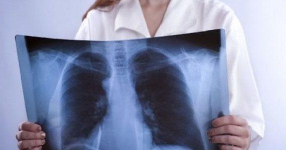 Fibrosi polmonare: tutto quello che c'è da sapere