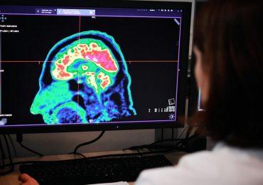 La fibrillazione atriale provoca declino cognitivo e demenza