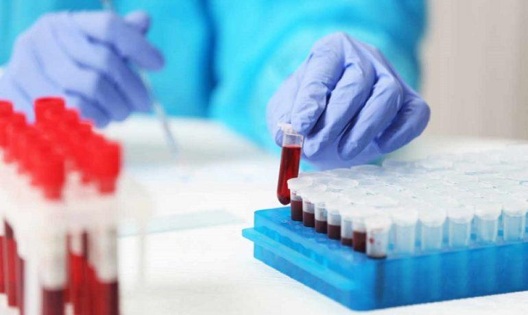 Tumori: predire l'evoluzione in malattia metastatica con un prelievo di sangue