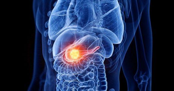 Verona, l'Istituto del pancreas celebra i 3mila interventi eseguiti in 20 anni