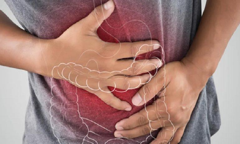 Colite ulcerosa, scoperto enzima responsabile