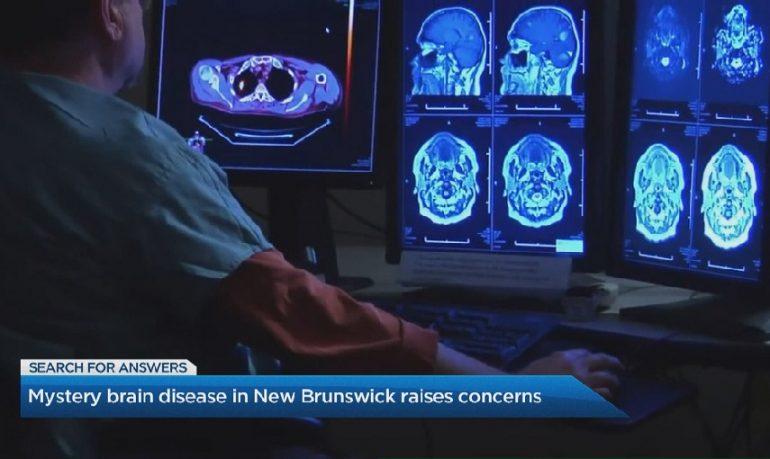 Canada, è allarme per una misteriosa sindrome neurologica