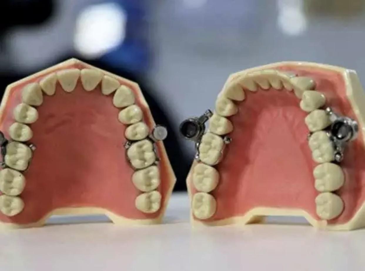 DentalSlim Diet Control: il primo device in grado di serrare mandibola e mascella per combattere l'obesità 2