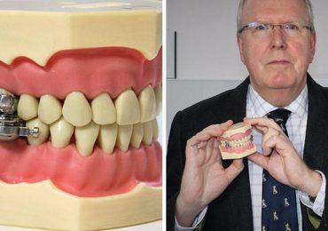 DentalSlim Diet Control: il primo device in grado di serrare mandibola e mascella per combattere l'obesità