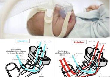 Infant Flow: l'applicazione dell'effetto 'Conada' nella ventilazione non invasiva del neonato 1