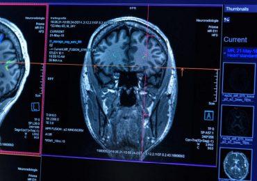 Sclerosi multipla, scoperto nuovo processo patologico alla base della perdita di mielina