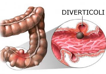 Malattia diverticolare: la dieta