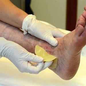 Opi la Spezia: una borsa di studio per il Master sulla cura e assistenza delle lesioni cutanee
