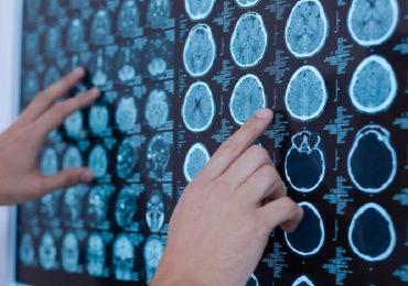 Emorragia intracerebrale, l'acido tranexamico non riduce la crescita dell'ematoma