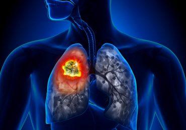 Un nuovo studio di screening del cancro al polmone ha ottenuto una riduzione della mortalità del 35%