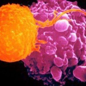 """Tumori, scoperta variante proteica in grado di """"affamarli"""""""