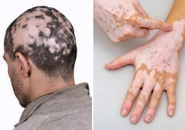 Alopecia e vitiligine: i nuovi orizzonti della fotoprotezione a basso impatto ambientale