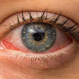 Congiuntivite: Cause e sintomi