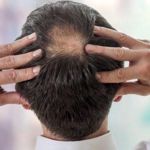 """Invecchiamento, nuova ipotesi sulla perdita dei capelli: dipende dalla """"fuga"""" di cellule staminali dal bulbo pilifero"""