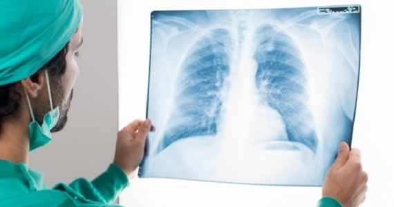 Tumore al polmone: nuovi test per valutazione simultanea di alterazioni genetiche